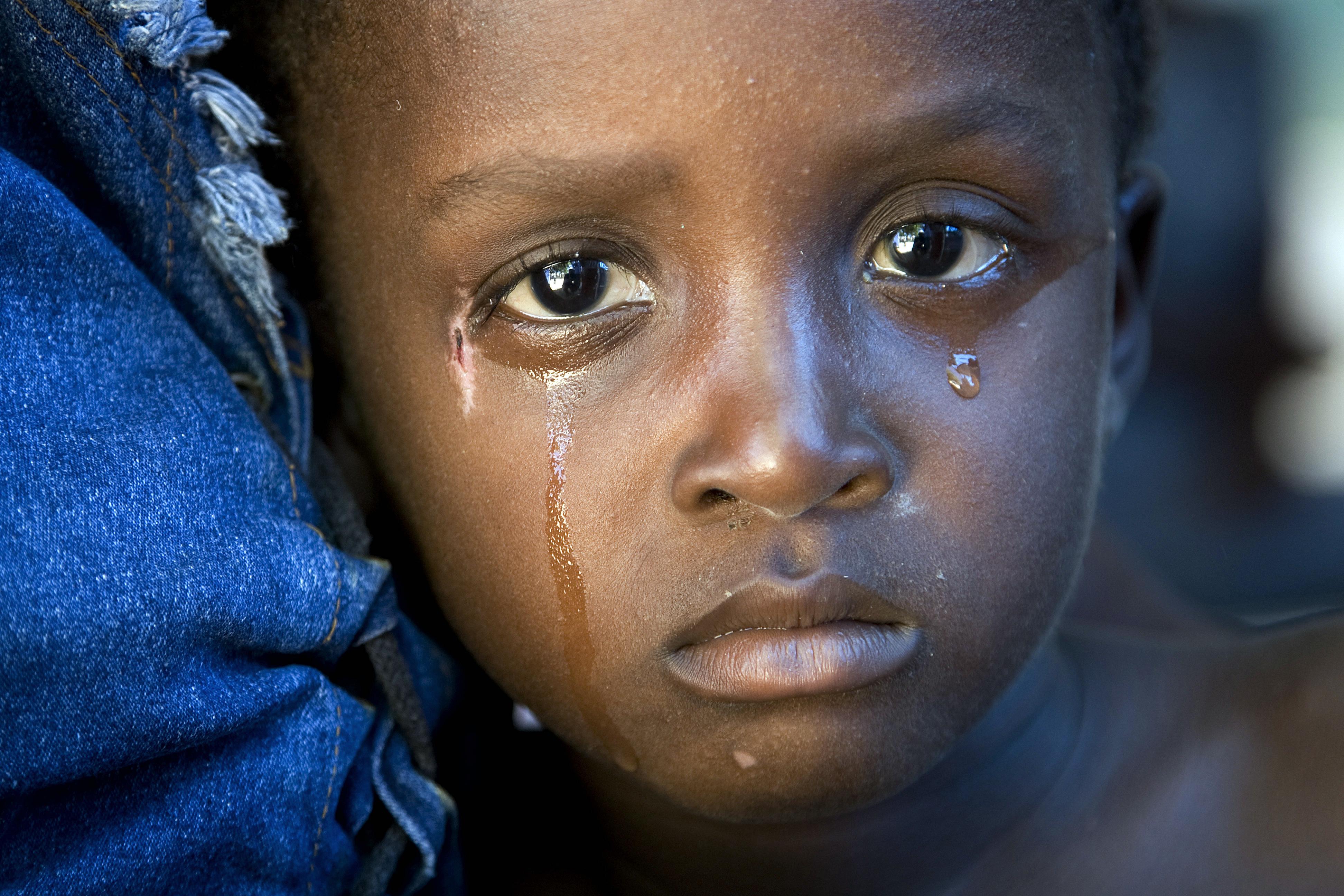Trachoma eyes child